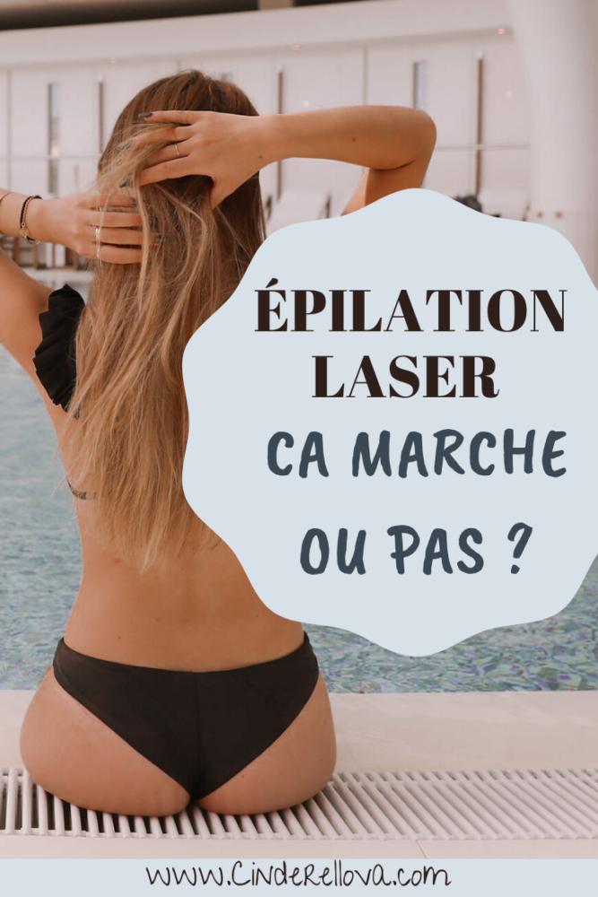 Avis epilation laser resultat