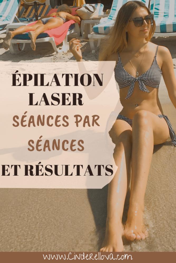 douleur epilation laser avis