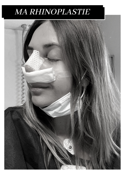 rhinoplastie experience blog